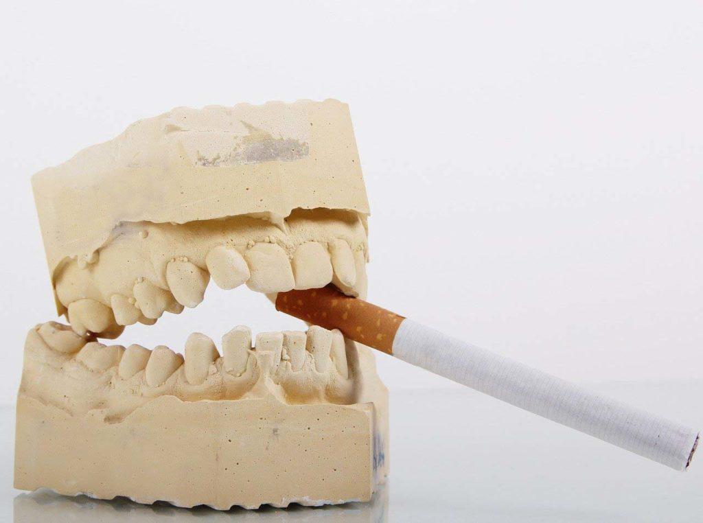 Dientes con cigarro