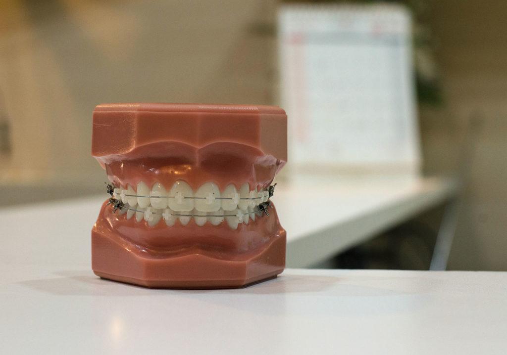 Maqueta de dientes con brackets