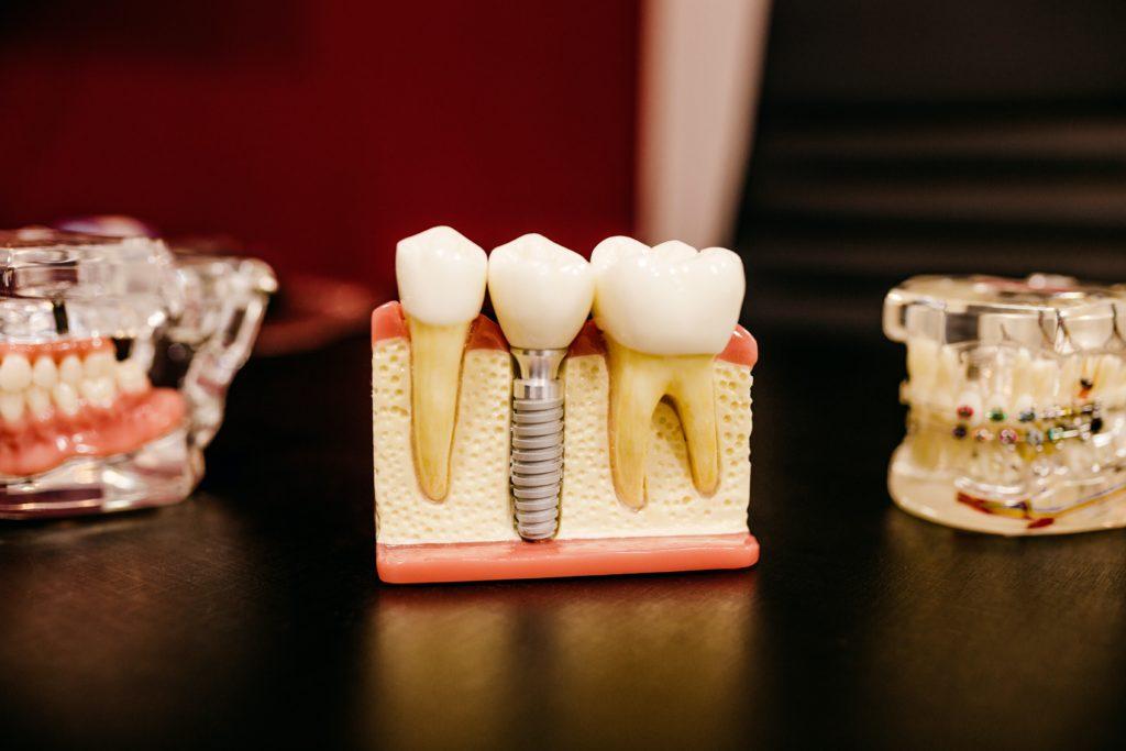 un diente con tornillo en el centro y otras dos dentaduras a los lados